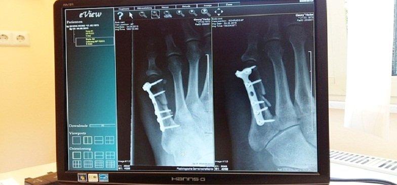 profissão em Radiologia Tecnológico radiologista